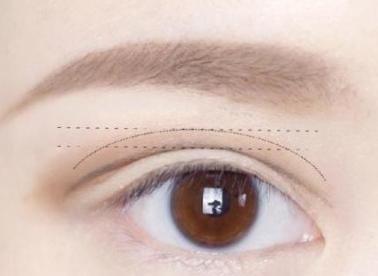 眼脸下垂怎么办 杭州康森整形医院上眼脸下垂成功的标准