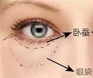 祛眼袋的有效方法是什么 成都韩美整形医院超微创 不开刀