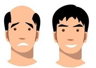 头发秃了怎么办 长沙碧莲盛植发专家张新进头发种植 免费约