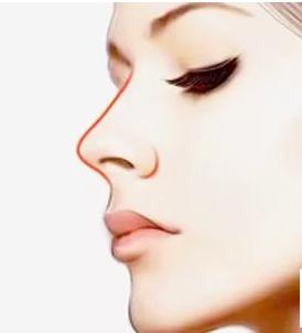 耳软骨隆鼻维持几年 南宁奢梵整形黄意辉让鼻部自然流畅