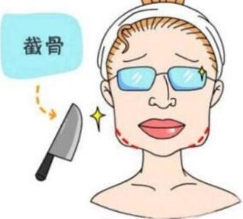 贵阳华美整形下颌角截骨手术费用 邓诚数万例手术无一投诉