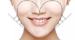 广州面部吸脂哪个医生好 韩妃杨德发黄金比例瘦脸 精致小脸