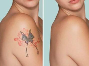激光洗纹身多久能恢复 嘉兴禾美整形安全无痕