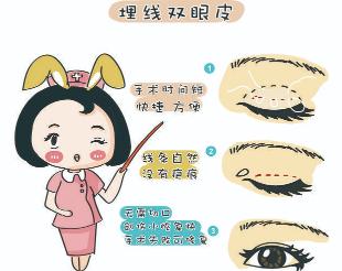埋线双眼皮多久恢复自然 上海奉浦医院整形科自然不留痕