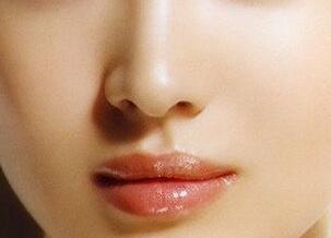 肋软骨隆鼻安全吗 杭州薇琳韩超医生技术怎么样