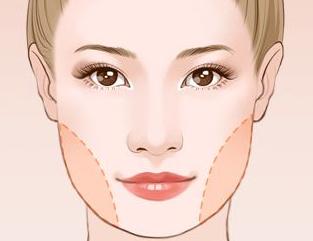 面部吸脂的适合年龄 长沙艾依美整形医院多层瘦脸 气质小V