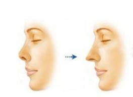 武汉蜜司美容整形杨蓉鼻小柱延长优势 适应哪些症状