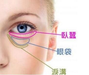 祛眼袋手术方法都有哪些 广州时光医院激光去眼袋价格多少