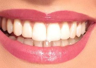 牙齿矫正好处 南充远大口腔门诊拯救参差不齐的牙齿