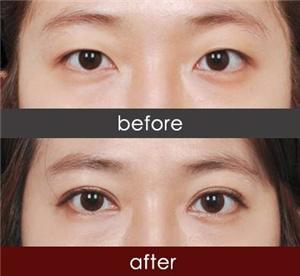 武汉伊莱美医院做祛眼袋手术多少钱 20分钟再现青春美眼