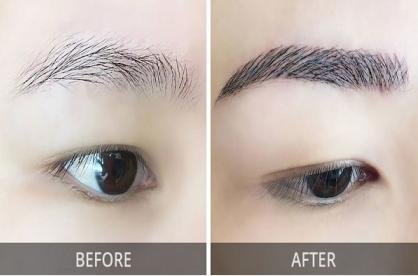 眉毛种植适合哪些人 广州韩妃整形植发科让眉毛充满喜悦