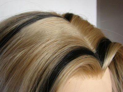 沈阳植发哪里好 雍禾植发医院种植美人尖 为形象加分