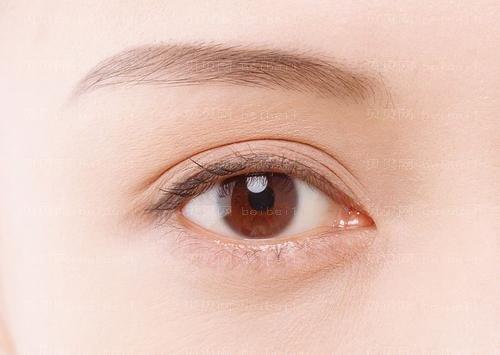 双眼皮有哪些方式 兰州长青佳黛整形医院赵凌琪经验丰富