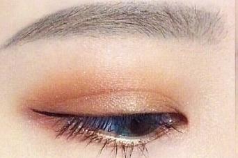 激光洗眉的优势 株洲嘉美整形医院轻松洗掉纹眉痕迹