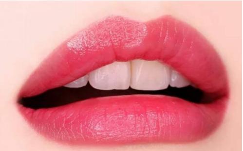 漂唇术优点 荆门玫漫医疗美容让唇部更娇艳