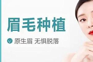 太原碧莲盛植发专家蒋学眉毛种植效果 附手术过程