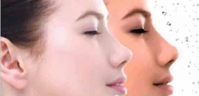 黑脸娃娃多少钱 商丘梵美美容整形让肌肤变白皙透亮