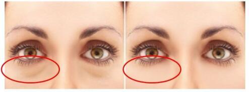 祛眼袋手术方法有哪些 上海格娜美医院重拾青春灵动双眸