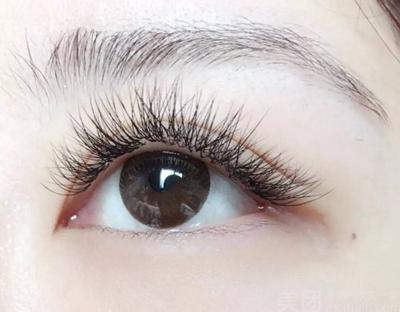 杭州雍禾植发睫毛种植的价格贵不贵 有风险吗