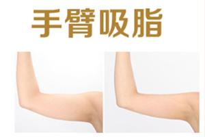 长沙美莱医院刘欢口碑好吗 吸脂瘦手臂需多少钱