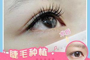 成都碧莲盛植发医院睫毛种植效果好吗 有哪些特点