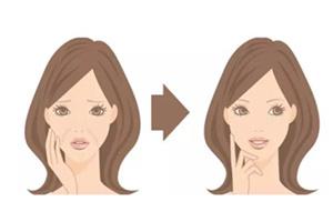 激光除皱效果能保持多少年 长春莱美医院30分钟无创除皱