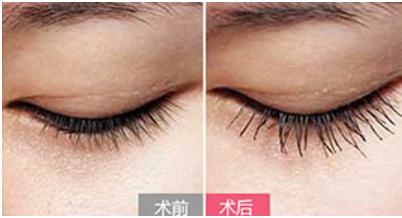 睫毛种植后会脱落吗 重庆西南医院植发科打造动人美睫