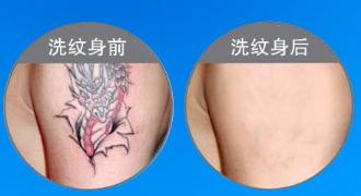纹身很酷 洗去不易 丽水樊承红整形激光洗纹身无痛不留疤