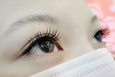 哪些人适合做眉毛移植 郑州碧莲盛植发整形专家解答