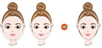 做面部吸脂要多少钱 长沙美莱刘欢无创收瘦脸 高度赞誉