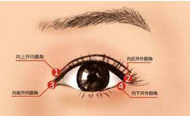 <font color=red>韩式开眼角</font>手术的优点