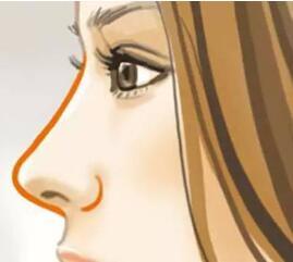sg隆鼻的注意事项 有哪些优点