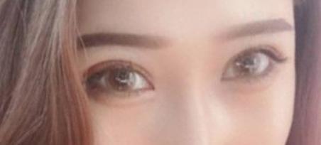 中山人民医院美容整形科<font color=red>双眼皮修复</font> 挽回美丽双眼