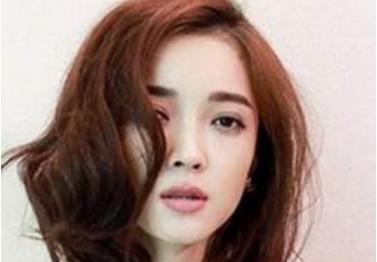 广西南宁华美优德w88中文官网登录怎样 老年人可以做植发手术吗