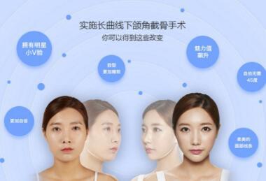 上海安达整形医院<font color=red>下颌角整形</font>的优势有哪些  是否有风险